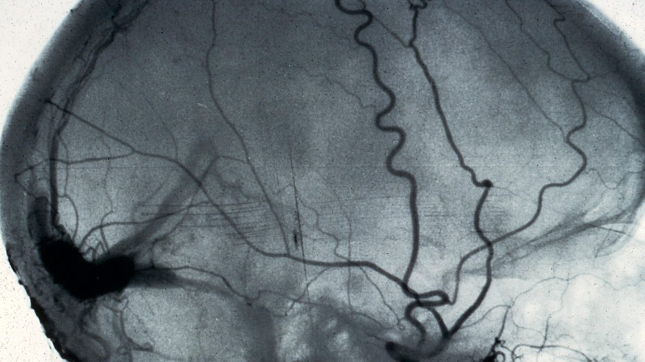 Brain Spine Foundation Angiogram Of The Brain